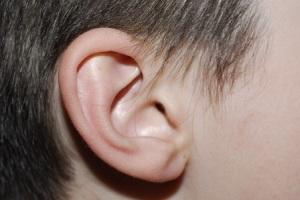 שעוות אוזניים